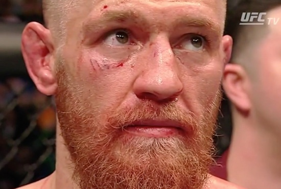 Checkout Conor McGregor Right After Loss To Nick Diaz