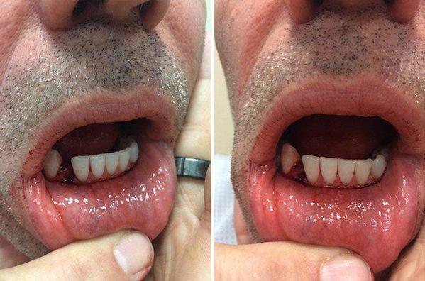 Kurt Warner Suffers Broken Jaw