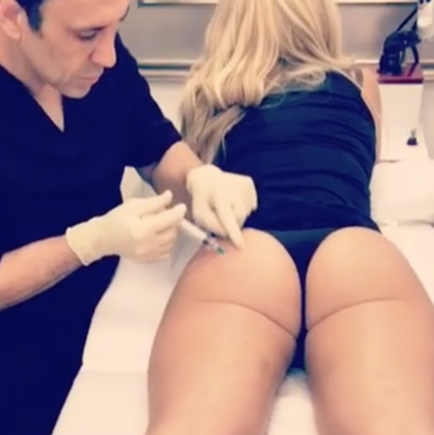 NFL Players Wife Gets Booty Injections And Posts On The Gram
